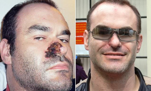 Solicitor in agony after nose got infected following botched surgery