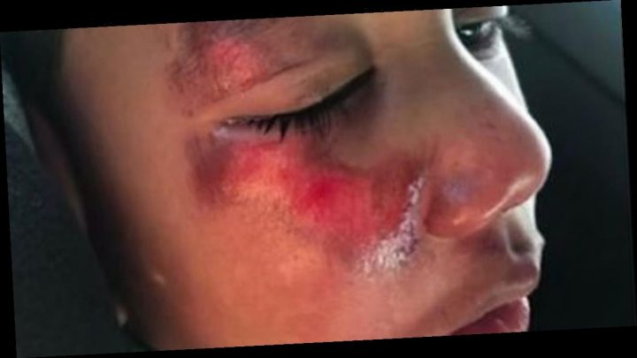 Boy, 4, says 'naughty teacher' after 'fall' leaves him with horrific skin burns