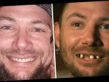 Tiger King's John Finlay Nearly Breaks the Internet with New Teeth