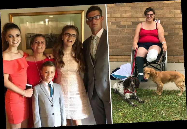 I lost my leg after 13 years of hell sparked by an epidural during labour – but I'm glad it was amputated