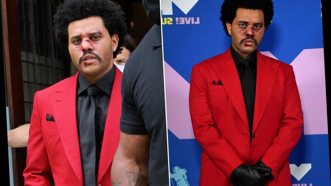 What happened to The Weeknd's face? Why he was bloody at the VMAs