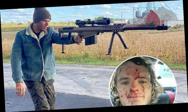 YouTuber Accidentally Shoots Himself in The Head