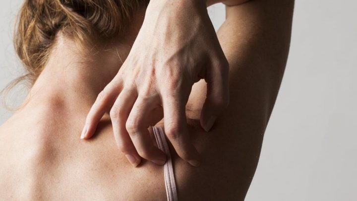 Is It Eczema or Psoriasis? How to Tell the Difference Between the Two Skin Conditions