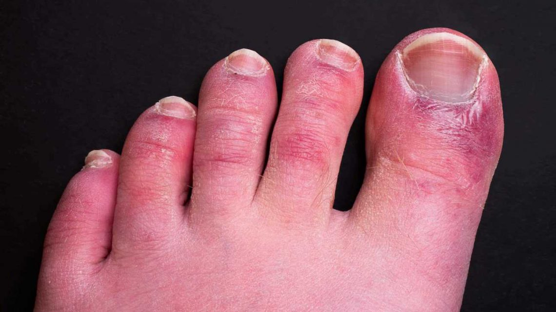 What is Covid toes? What are the symptoms?