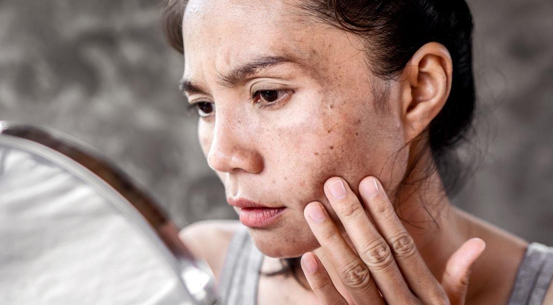 What is hyperpigmentation and how can you treat your skin? From serums to laser
